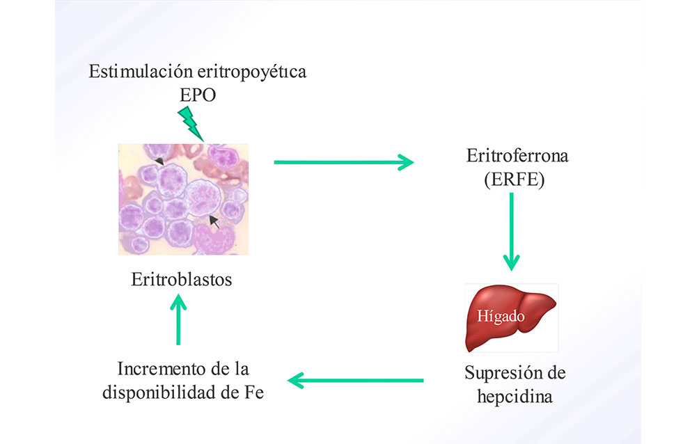Beta talasemia síntomas intermedios de diabetes