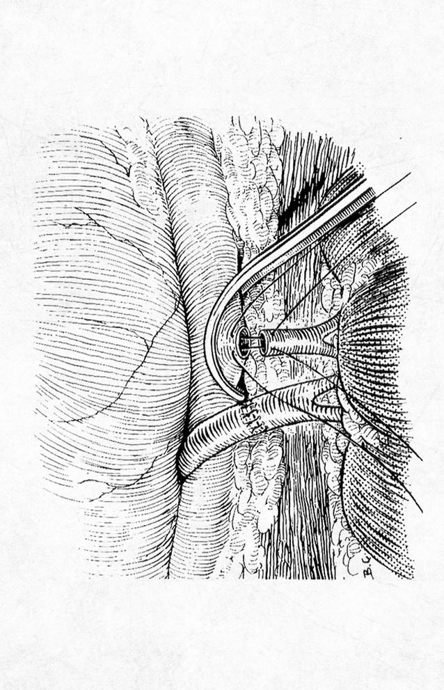 Embolia de aire arterial en riñón
